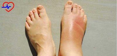 odemli-ayaklar
