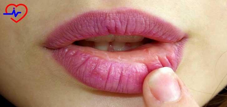 kadin-dudagi